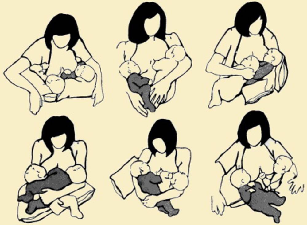 Кормление грудью: двойняшки. жизненная история: кормление новорожденных двойняшек
