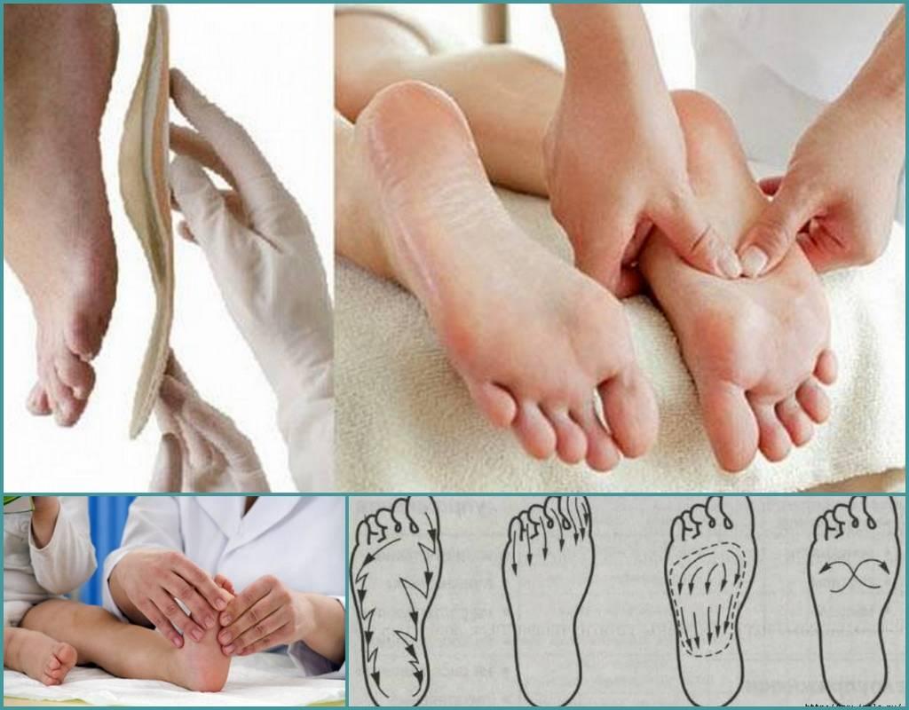 Массаж при вальгусной деформации стопы у детей, как делать в домашних условиях