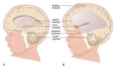 Расширение боковых желудочков головного мозга у ребенка лечение