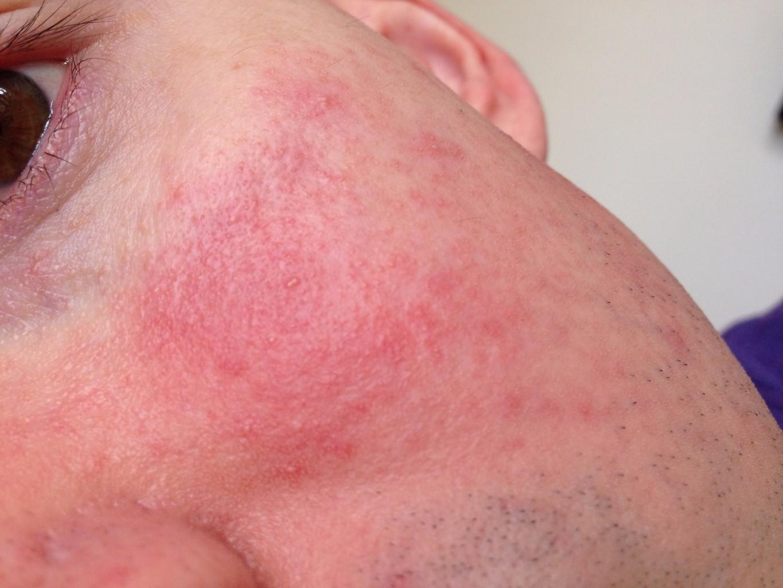 Сыпь на лице у ребенка 2 месяца
