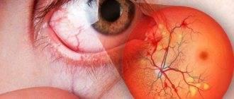 Ангиопатия сетчатки глаза у ребенка что это такое