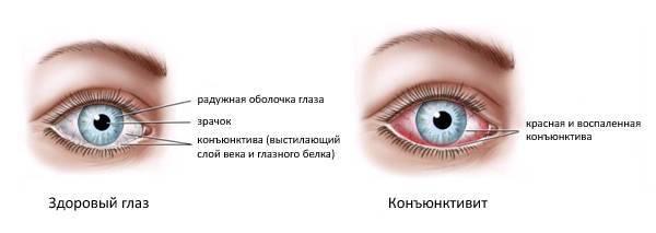 Конъюнктивит глаза у ребенка: фото симптомов, осложнения, лечение народными средствами в домашних условиях
