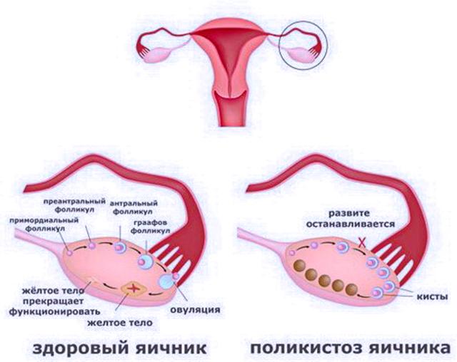 Беременность при спкя: план лечения и медицинские мифы. как забеременеть при спкя