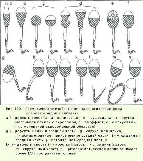 Влияние алкоголя на качество спермы