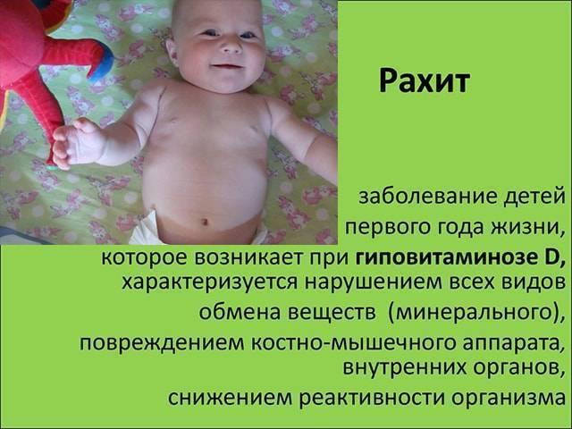 Рахит у ребенка: диагностика, лечение и профилактика