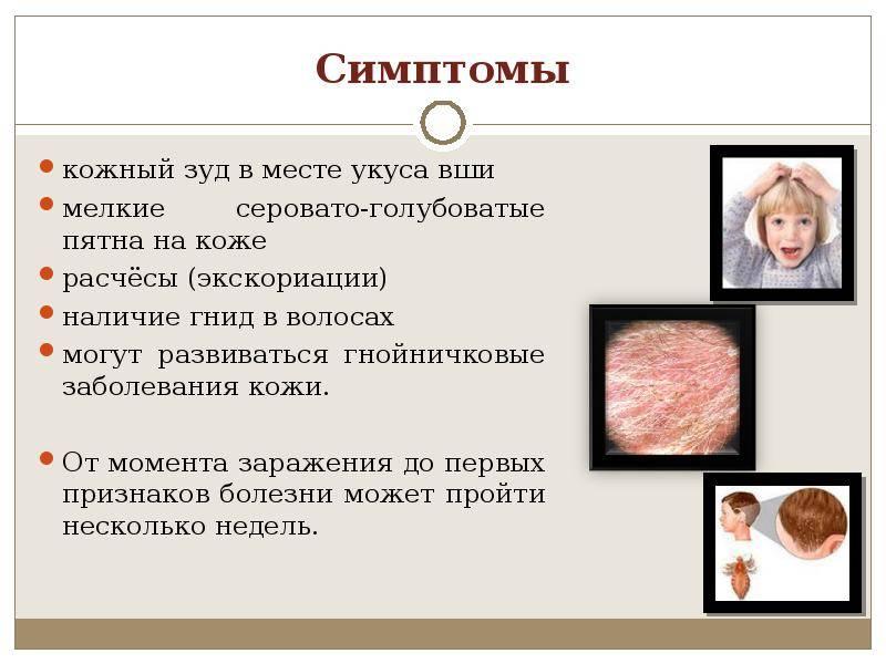 Болячки на теле у ребенка чешутся. инфекционные и неинфекционные заболевания кожи у детей: симптомы, описание
