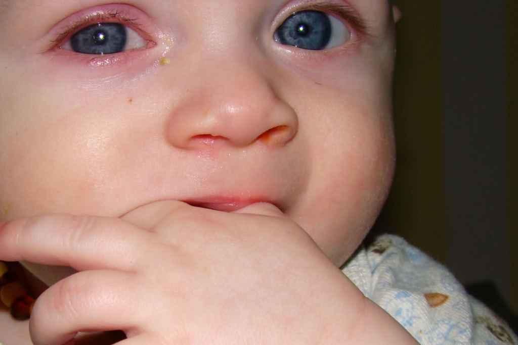 Что делать если у ребенка гноятся глаза