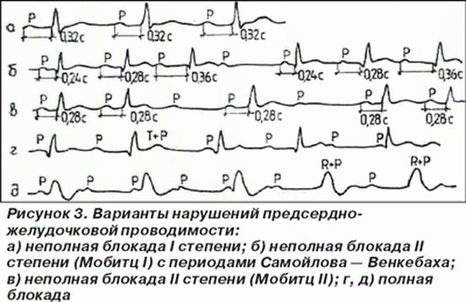 Основные нарушения внутрижелудочковой проводимости, методы лечения