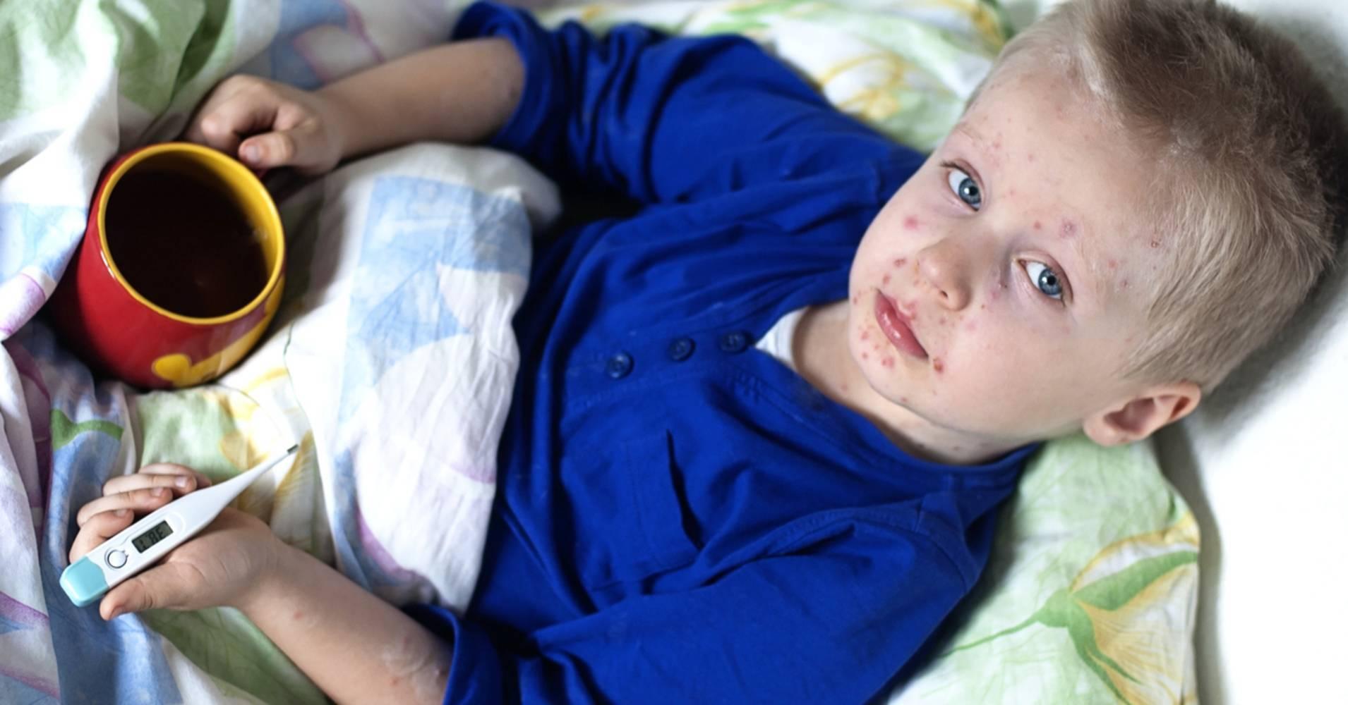 Коклюш у детей: признаки, осложнения, народное лечение