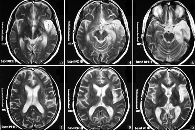 Резидуальная энцефалопатия у детей — что это такое: симптомы и лечение