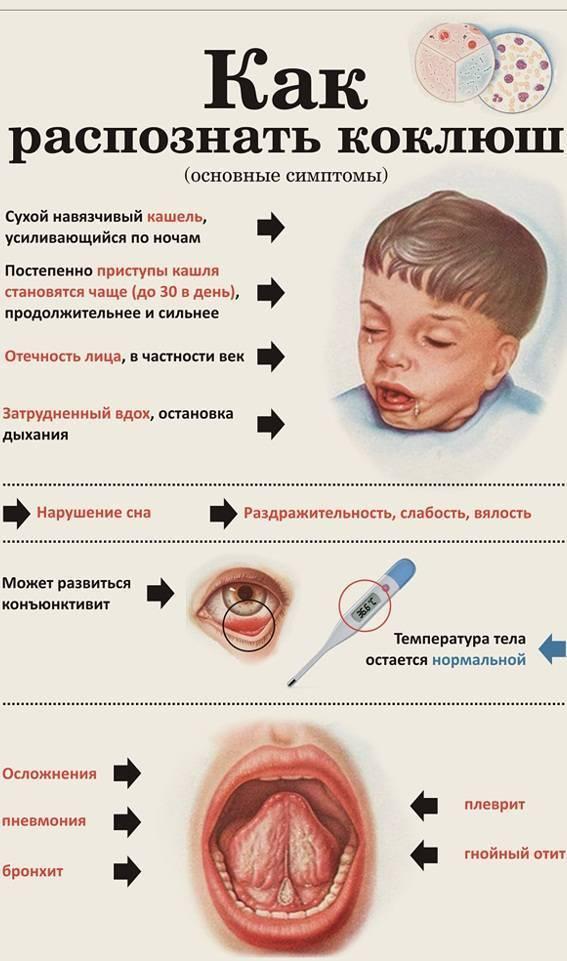 Дифтерия у детей: признаки, лечение, последствия, клинические рекомендации и вакцинация детской инфекции