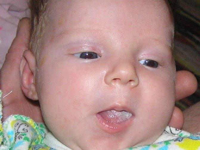 Молочница у новорожденных во рту: симптомы, лечение в домашних условиях