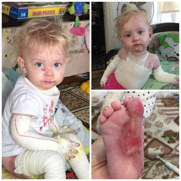Буллезный эпидермолиз — генетическое заболевание с летальным исходом