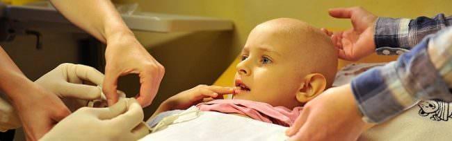 Лимфома кишечника: симптомы, у ребенка, лечение заболевания