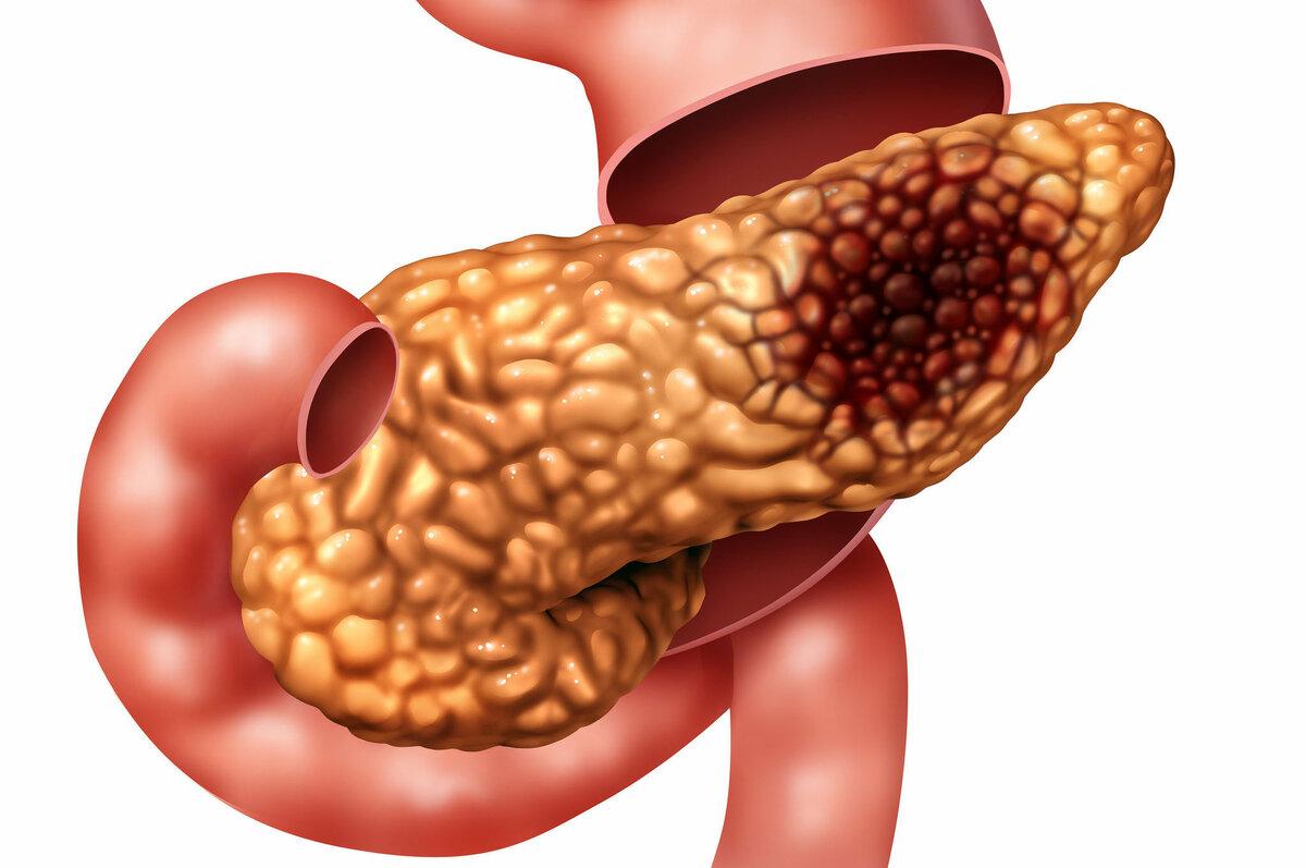 Признаки заболевания поджелудочной железы у ребенка симптомы и лечение