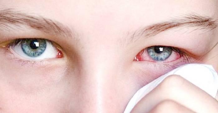 Конъюнктивит у ребенка (35 фото): чем лечить, симптомы и лечение детского конъюнктивита