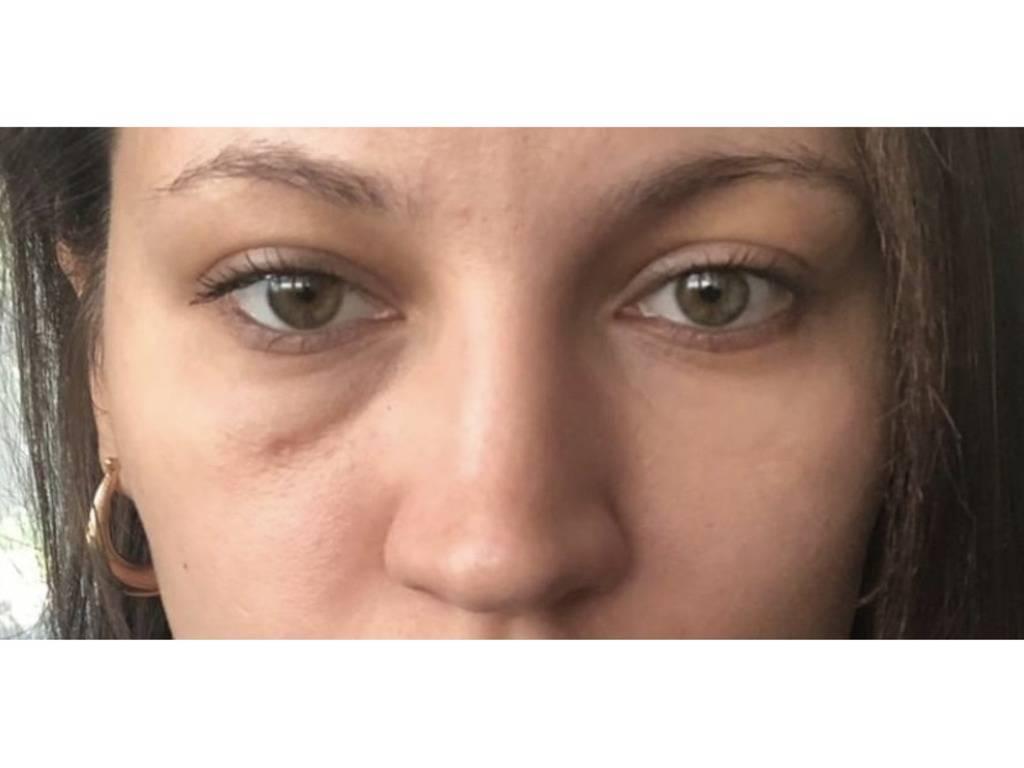 """Мешки под глазами у ребенка: причины и лечение - """"здоровое око"""""""