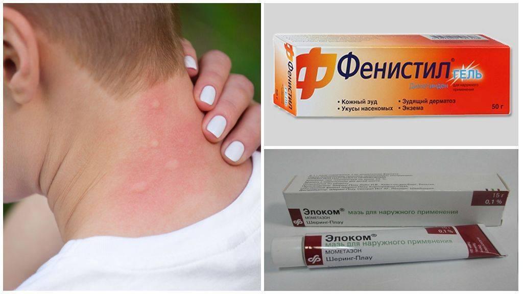 Чем снять зуд от аллергии в домашних условиях у ребенка