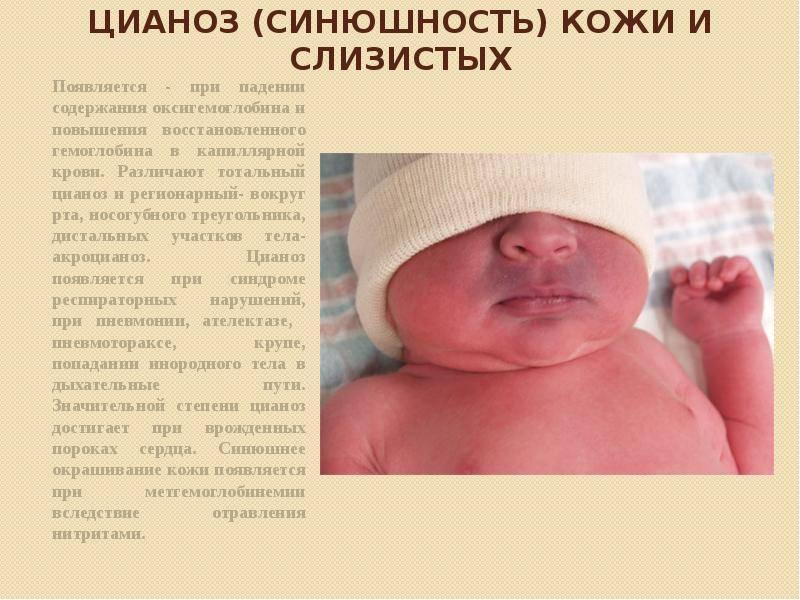 Новорожденный синеет при кормлении. синий носогубный треугольник у грудничка