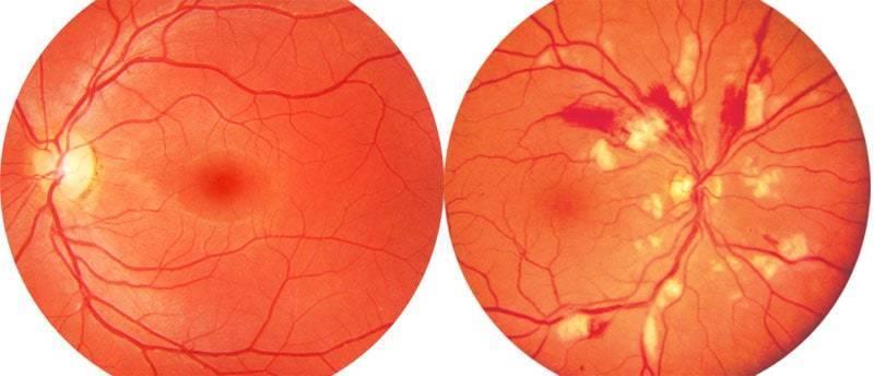 Ангиопатия сосудов сетчатки обоих глаз (ои) у ребенка: причины и лечение