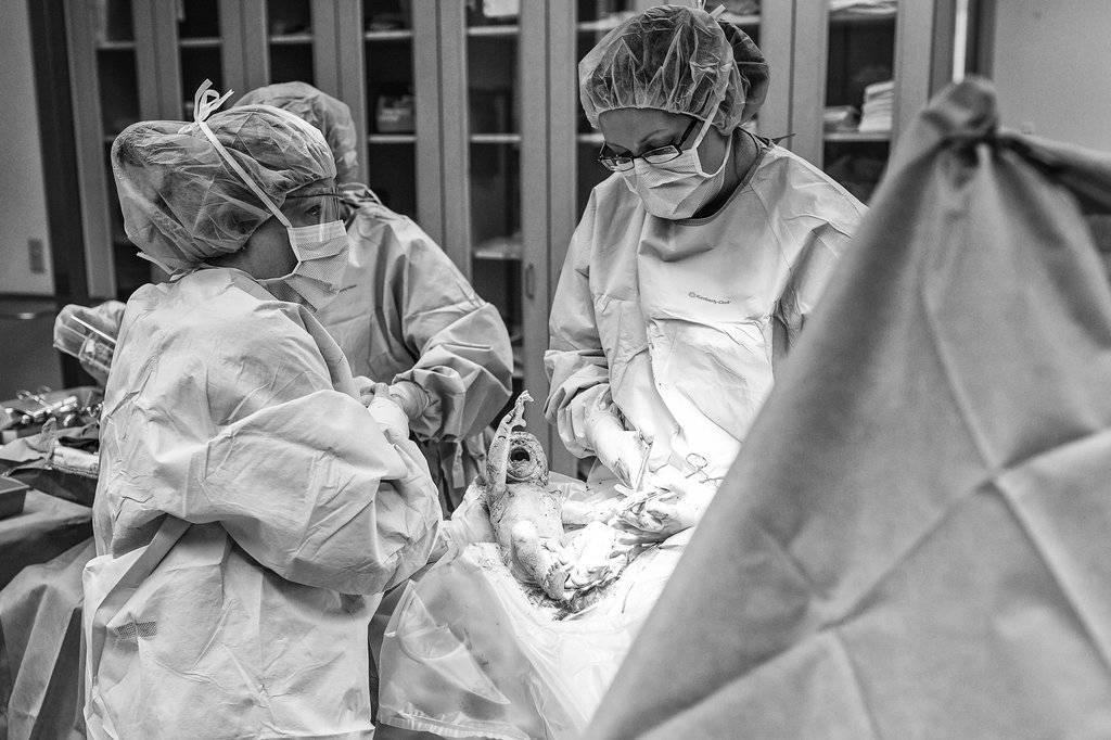 Операция кесарева сечения