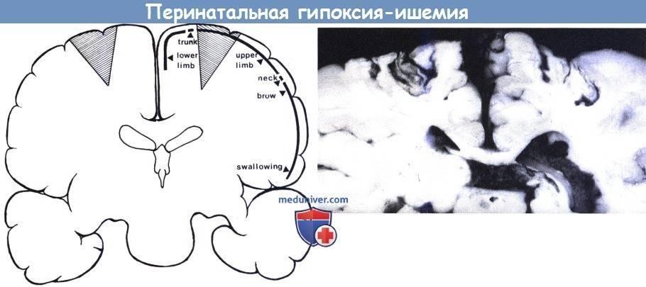 Церебральная ишемия 1 степени у новорожденного: лечение и последствия