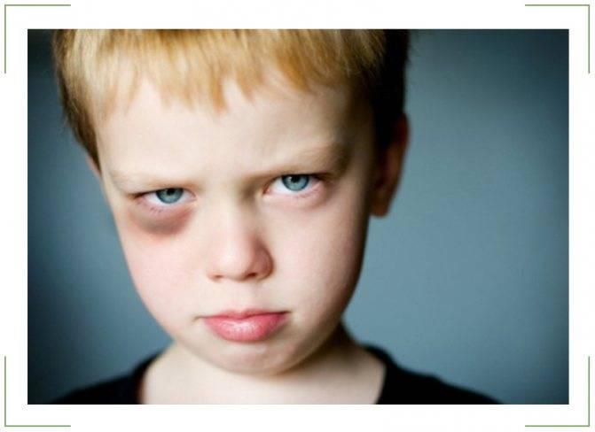 Почему у ребенка появляются синяки под глазами: причины и способы лечения