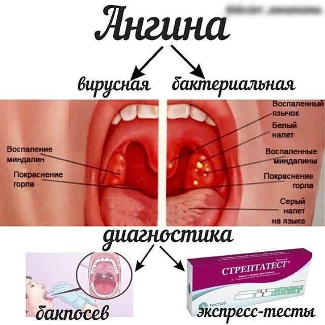 3 схемы лечения лакунарной ангины, симптомы