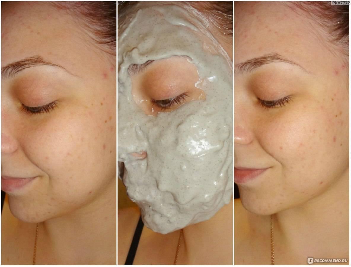 Как сделать маску для лица от прыщей в домашних условиях