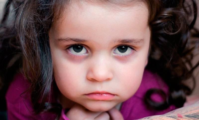 Синяки под глазами у ребенка: причины, лечение, профилактика