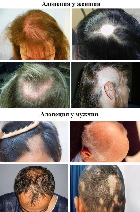 Очаговая алопеция — как лечить у женщин и мужчин