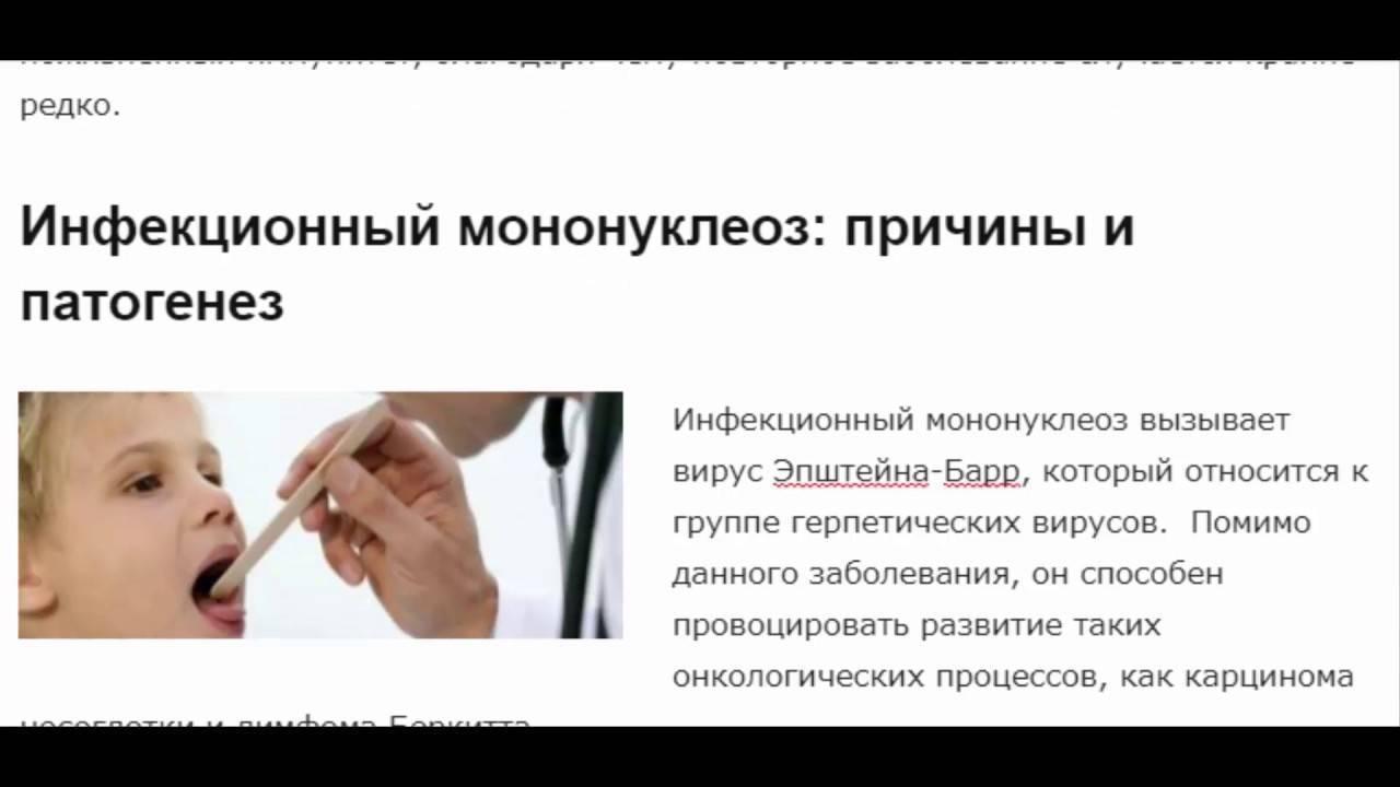 Мононуклеоз у детей симптомы и лечение: методы профилактики