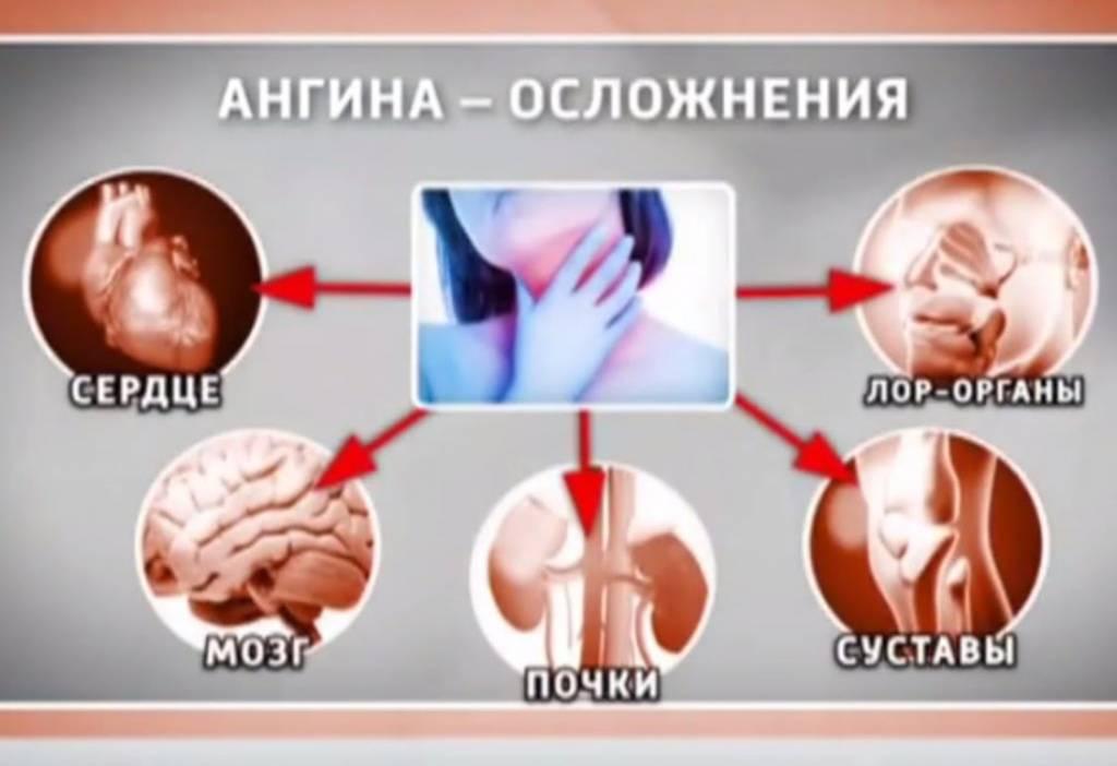 Осложнения после ангины у взрослых и детей: на сердце, суставы, уши, почки