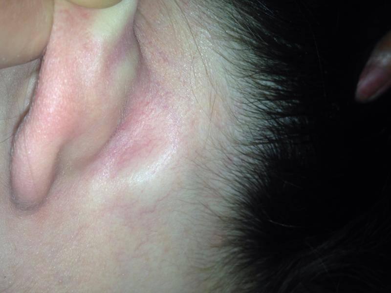 У ребенка за ухом шишка, нарост в форме шишки: что это такое (фото)