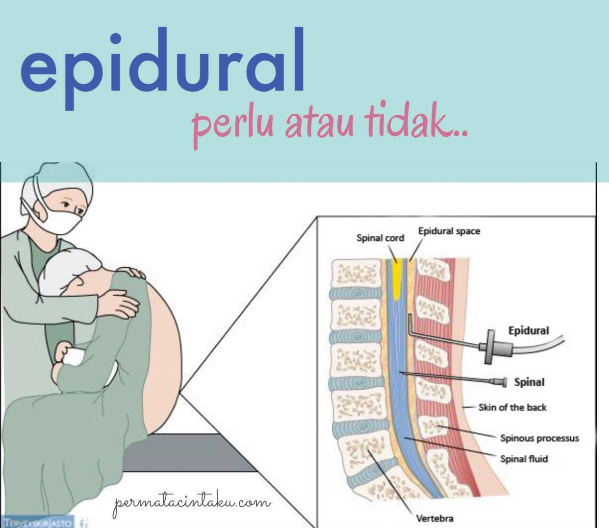 Спинальная и эпидуральная анестезия: различия