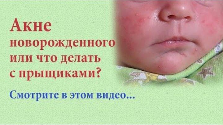 """Акне на лице у новорожденных: признаки """"цветения"""", лечение и правила ухода за кожей грудного ребенка - про папилломы"""