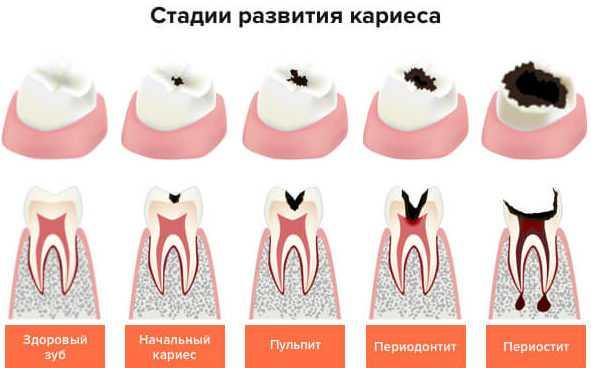 Можно ли лечить зубы при грудном вскармливании с анестезией: долой зубную боль