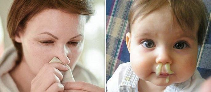 Если ребенок хрюкает носом а соплей нет