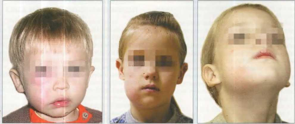 Гематогенный остеомиелит у детей