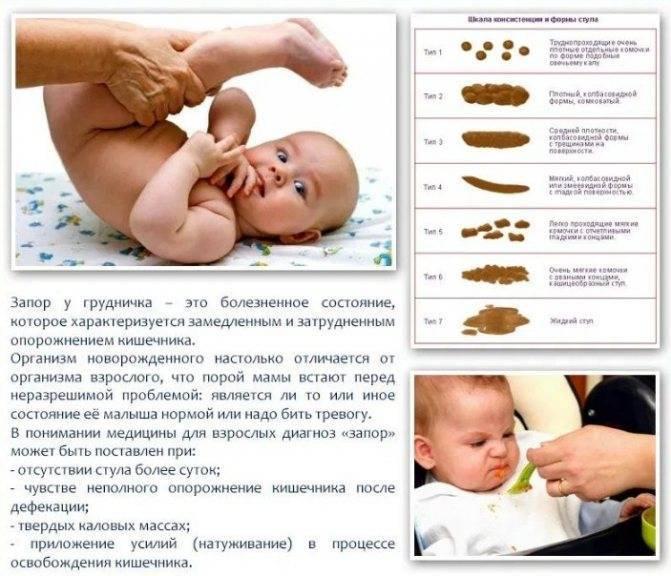 Запоры у новорождённых при искусственном вскармливании: какие могут быть причины