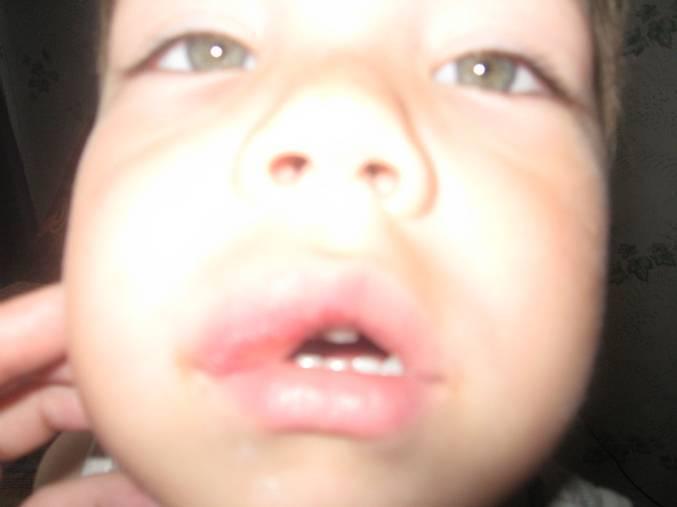 Ребенок ушиб губу что делать