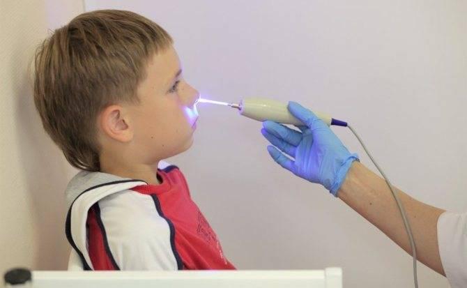 Симптомы и лечение вазомоторного ринита у детей