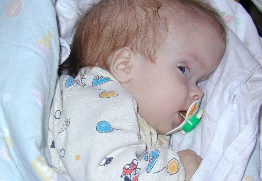 Гидроцефалия головного мозга у детей и новорожденных: симптомы и последствия, причины, лечение