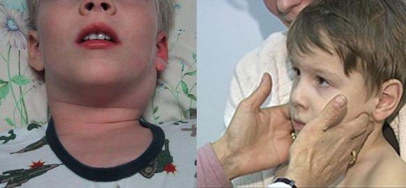 7 причин почему воспаляется лимфоузел на шее у ребенка