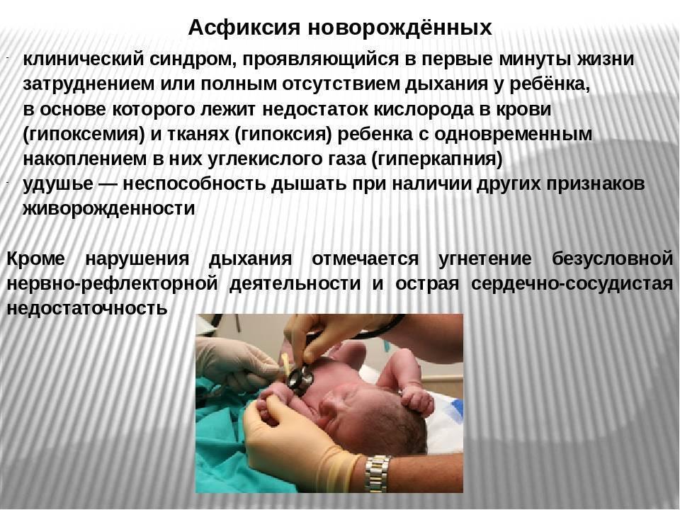Ппцнс у новорожденных что это