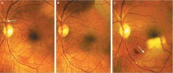 Ангиопатия сетчатки глаза у детей что это такое