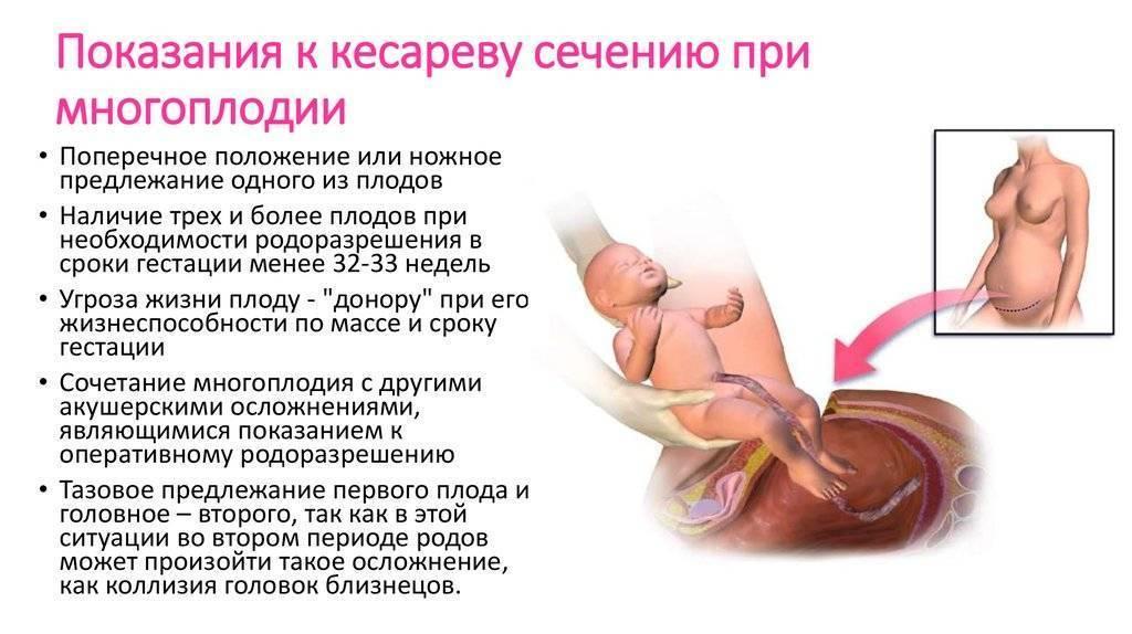 Кесарева сечения и при грудном вскармливании?, обезболивающие свечи кетонал: можно ли применять их после родов - все о суставах