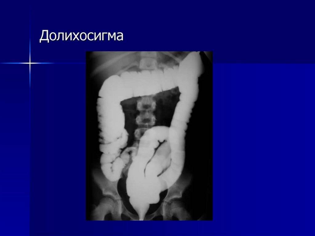 Долихосигма кишечника у ребёнка, методы лечения на фото