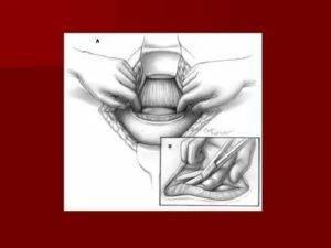 Как сходить в туалет по большому после родов и кесарева сечения, как восстановить стул?