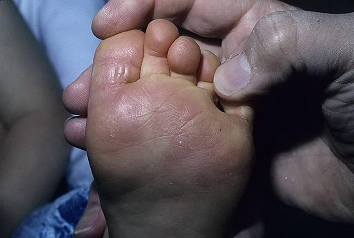Эффективные методы лечения грибка стопы у ребенка: диагностика и профилактика микоза у детей